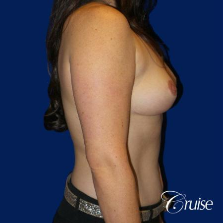 Breast Reduction No Implants - After Image 3