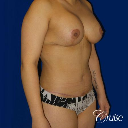Extended Tummy Tuck, BBL, Breast Lift Anchor With Silicone - After Image 3