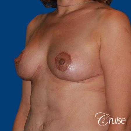 best breast reduction no implants -  After Image 3