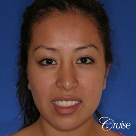 plastic surgeon does otoplasty in Newport beach -  After Image 1