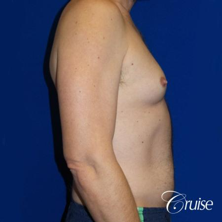 Best Gynecomastia surgeons Los Angeles - Before and After Image 3