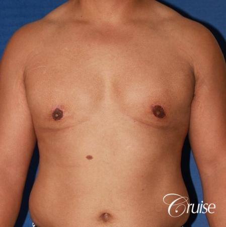 donut lift gynecomastia moderate adult -  After Image 1