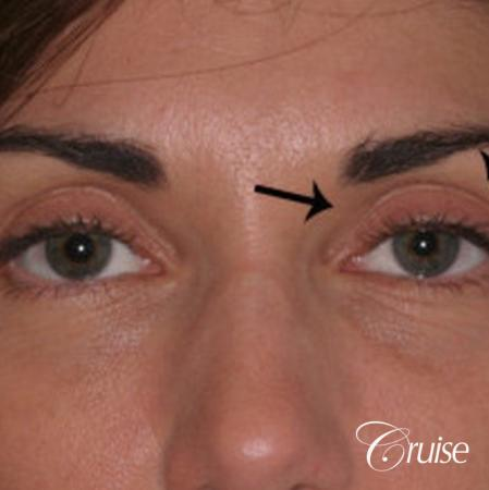 best soft tissue filler using Juvaderm - Before Image