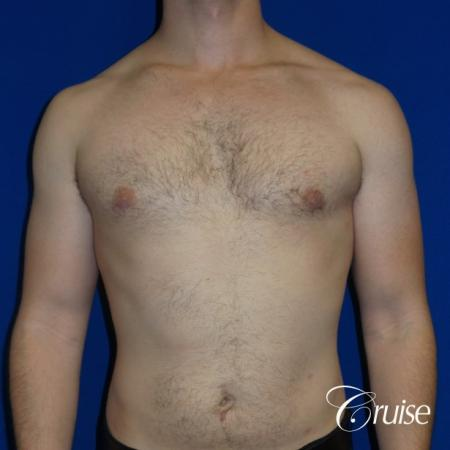 Adult gynecomastia pictures -  After Image 1