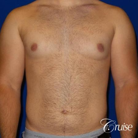 best gynecomastia results - Before Image 1