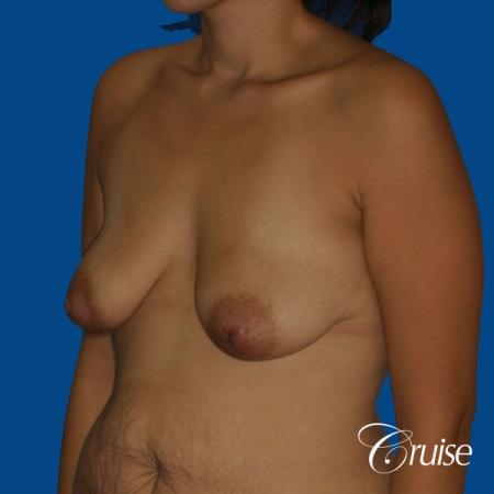 best breast lift anchor with saline augmentation - Before Image 3
