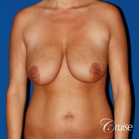 best breast lift anchor with saline implants - Before Image 1