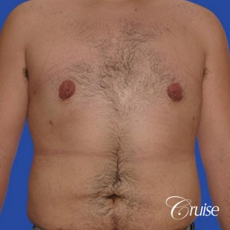 moderate gynecomastia with pointy nipples male -  After Image 1