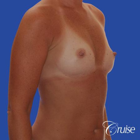 Breast Augmentation - Before and After 4
