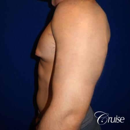Pictures of young bodybuilder with gynecomastia - Before and After Image 3