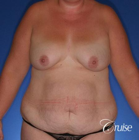 best mommy make over scars on massive weight loss silicone - Before Image 1