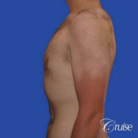 weight loss patient with gynecomastia -  After Image 2