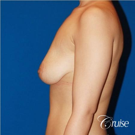 breast lift anchor with saline implants on young girl - Before Image 3