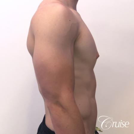 gynecomastia with puffy nipples - Before and After Image 4