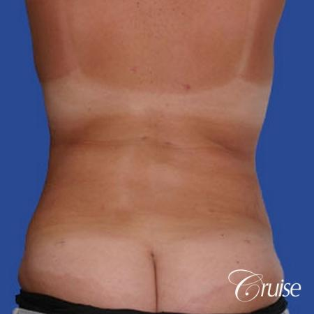 best before and after of liposuction abdomen, flanks, and upper back -  After Image 1