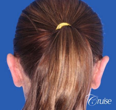 best female otoplasty in orange county -  After Image 2