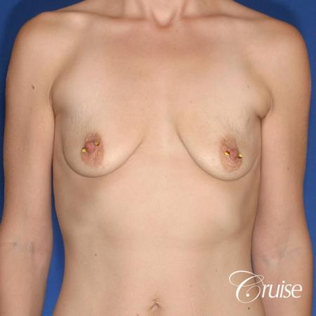 best results for breast lift lollipop with silicone implants - Before Image 1