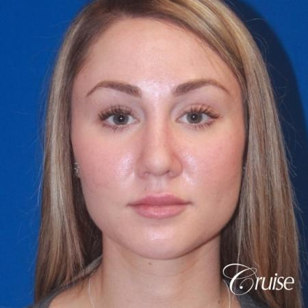 best rhinoplasty with natural results -  After Image 1