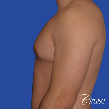 mild case of gynecomastia on adult - After Image 2