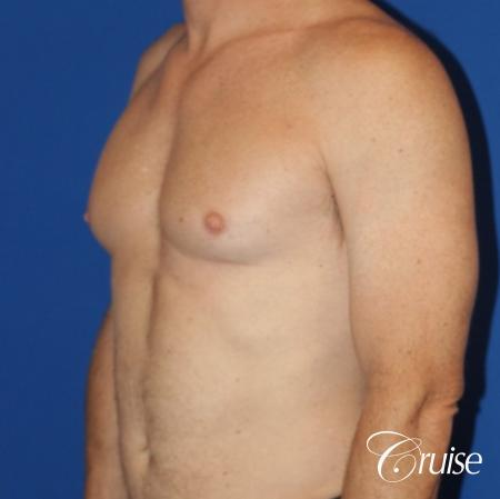 best gynecomastia results on 45 year old - Before Image 2