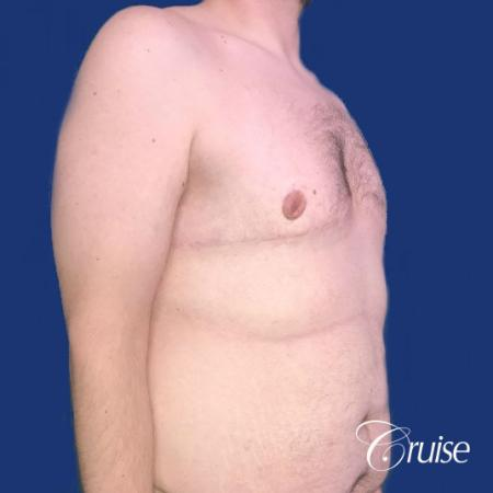 Pedicle incision Dr. Cruise Newport Beach CA -  After Image 5