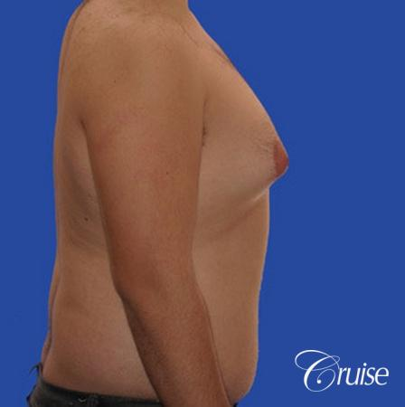 male liposuction abdomen flanks with Gynecomastia - Before and After Image 5