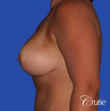 best breast lift and reduction with plastic surgeon in Newport Beach -  After Image 2
