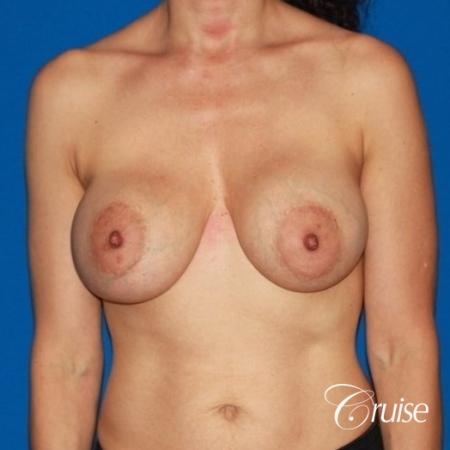 best breast lift revision with high profile silicone 425cc - Before Image 1