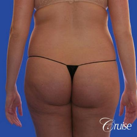 best pictures of liposuction with plastic surgeon in Newport Beach - Before Image 1
