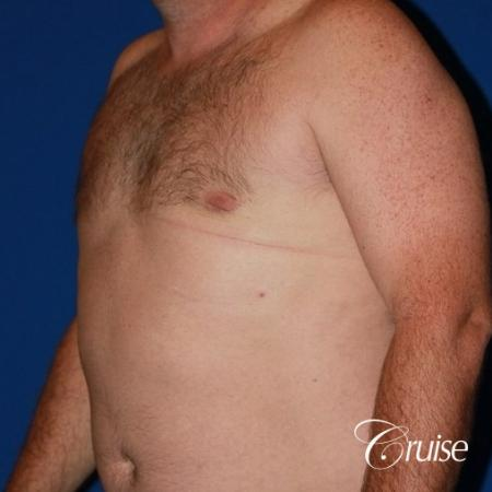 mild puffy nipple on 42 year old -  After Image 3