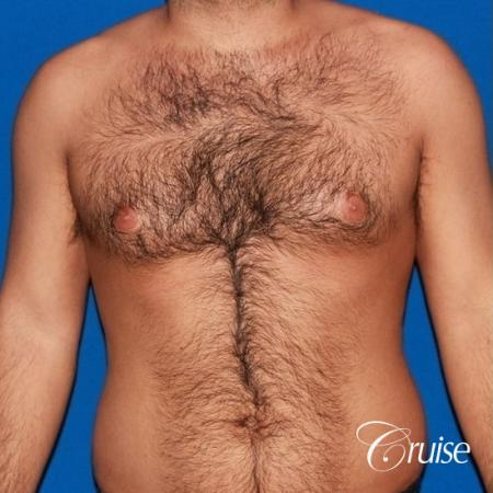moderate gynecomastia on adult - Before Image 1