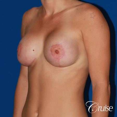 best pictures of young patients with silicone breast lift anchor -  After Image 3