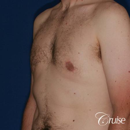 adult male with moderate gynecomastia gets donut lift -  After Image 3