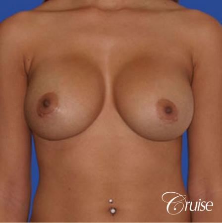 best pictures of ruptured implant breast revision -  After 1