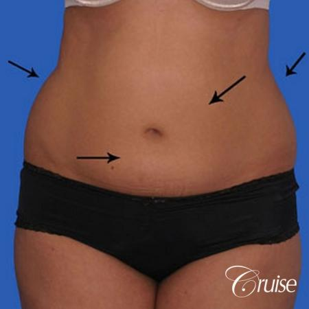 small waist with liposuction abdomen and flanks - Before Image 1