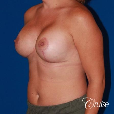 best results for breast lift anchor with saline implants -  After Image 3