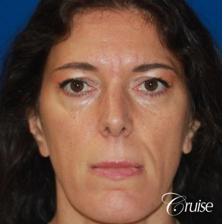 Fat Transfer - Forehead, Temple, Tear Trough, Lower Lids, Cheeks - Before Image