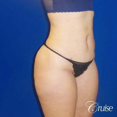 Liposuction Flanks & Abdomen - After Image 5_2
