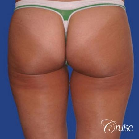 best thigh thinning liposuction on thighs - After Image