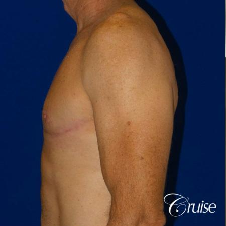 Top Gynecomastia surgeons -  After Image 3