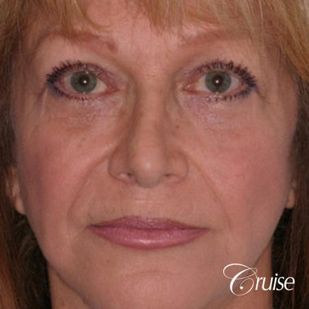 best chemical peel on female patient - After Image