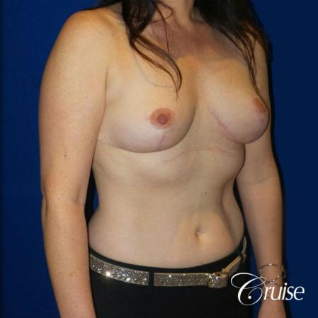 Breast Reduction No Implants - After Image 4