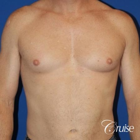 best gynecomastia results on 45 year old - Before Image 1