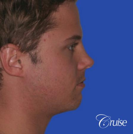 young male with best chin augmentation - Before Image 2