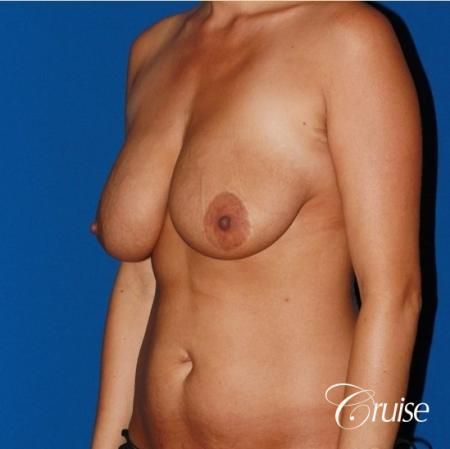 tummy tuck and saline breast lift with large implants on mommy makeover - Before Image 3