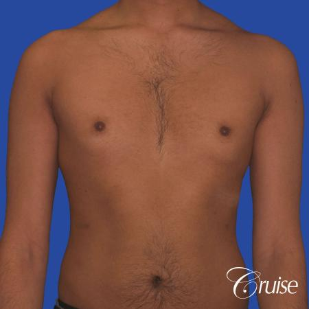 best before and after results for gynecomastia surgery - Before Image 1
