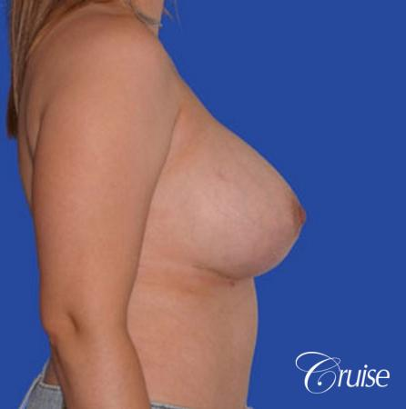 best breast reduction pictures with saline implants -  After Image 2
