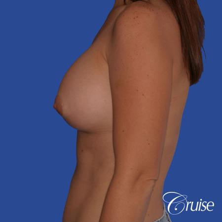 Breast Augmentation - After 2