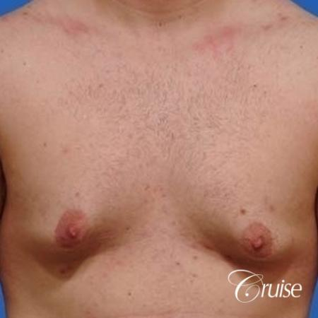 mild gynecomastia with puffy nipple on adult - Before Image 1