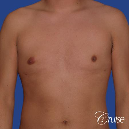best gynecomastia results with plastic surgeon and specialist -  After Image 1